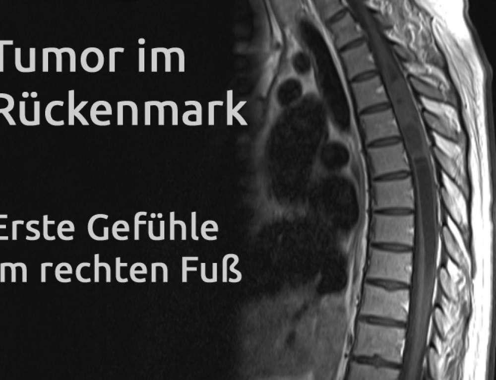 Tumor im Rückenmark – Erfahrungsbericht Teil 19