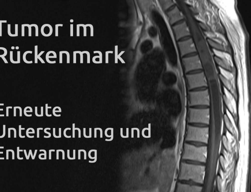 Tumor im Rückenmark – Erfahrungsbericht Teil 20
