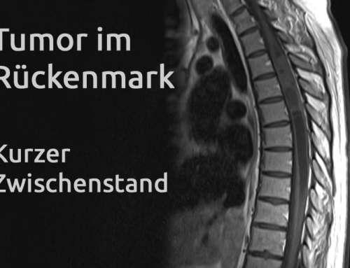 Tumor im Rückenmark – Erfahrungsbericht Teil 21