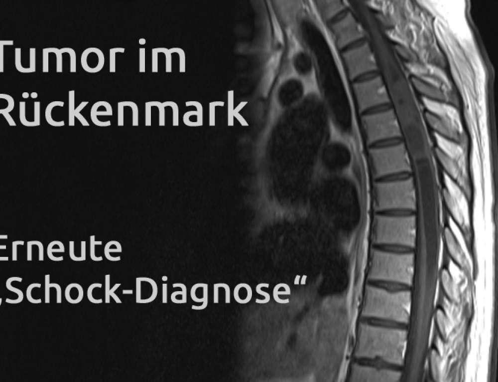 Tumor im Rückenmark – Erfahrungsbericht Teil 22