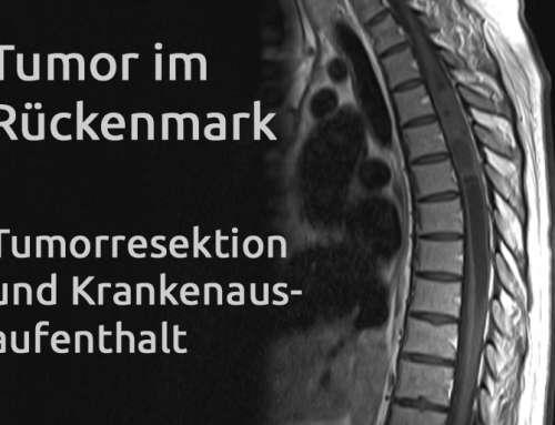 Tumor im Rückenmark – Erfahrungsbericht Teil 23
