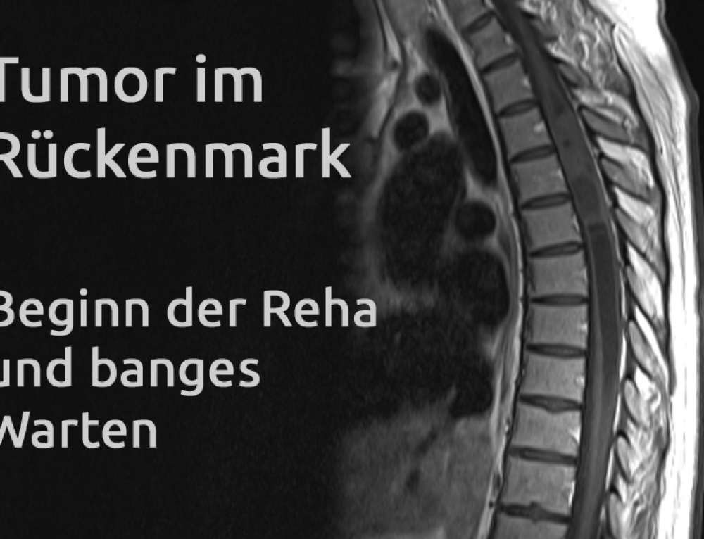 Tumor im Rückenmark – Erfahrungsbericht Teil 24