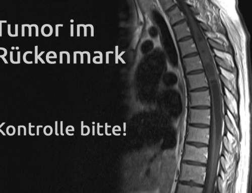 Tumor im Rückenmark – Erfahrungsbericht Teil 25