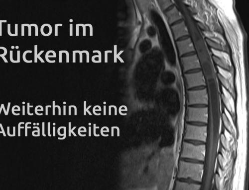 Tumor im Rückenmark – Erfahrungsbericht Teil 26